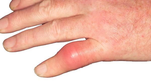 Cách điều trị bệnh gút hiệu quả - Ảnh 1