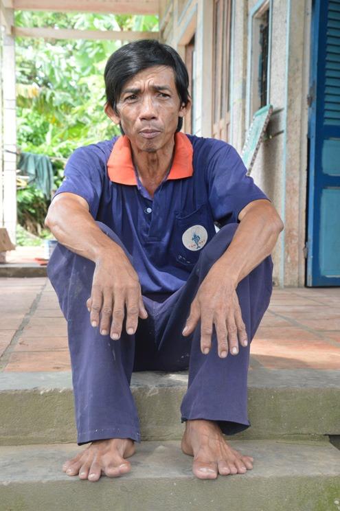 Kỳ lạ người đàn ông có 25 ngón tay, chân - Ảnh 1