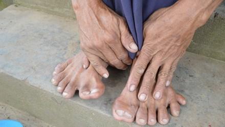 Kỳ lạ người đàn ông có 25 ngón tay, chân - Ảnh 2