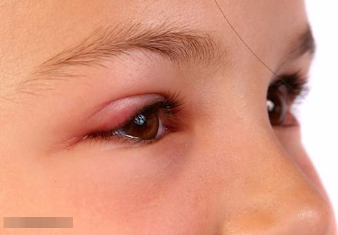 Cách chữa lẹo mắt cho bà bầu nhanh nhất - Ảnh 1