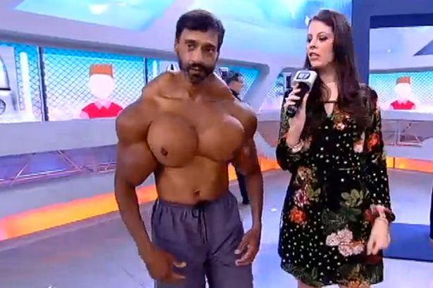 """Người đàn ông có cơ bắp cực """"dị"""" - Ảnh 1"""