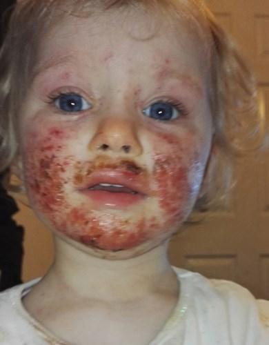 Mới 8 tháng tuổi, em bé đã có mụn cóc sinh dục - Ảnh 1
