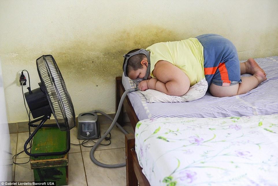 Bé trai 5 tuổi nặng 80kg có thể thiệt mạng vì quá béo - Ảnh 5