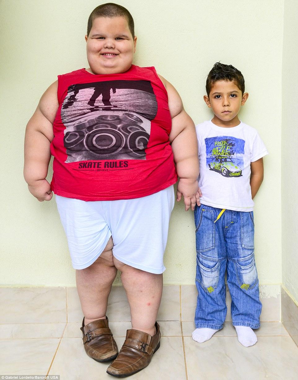 Bé trai 5 tuổi nặng 80kg có thể thiệt mạng vì quá béo - Ảnh 1