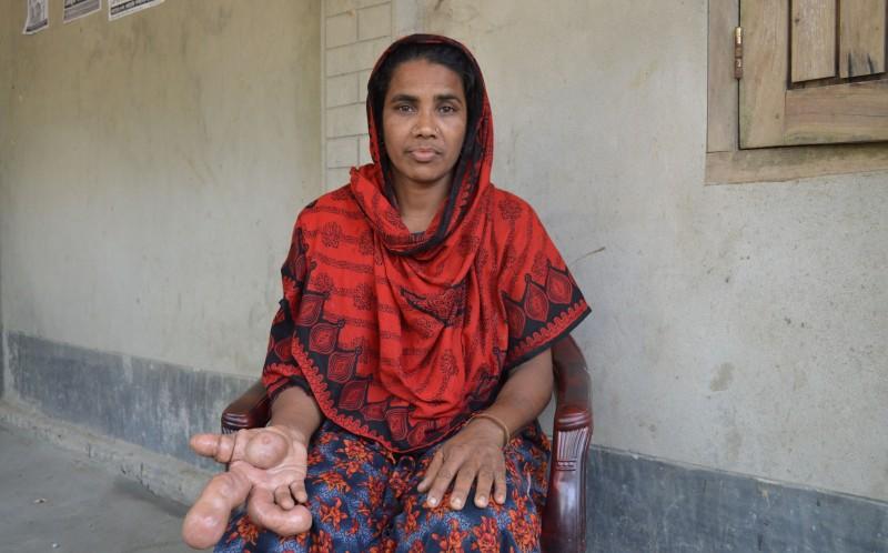 Người phụ nữ có bàn tay phải to lạ thường - Ảnh 3