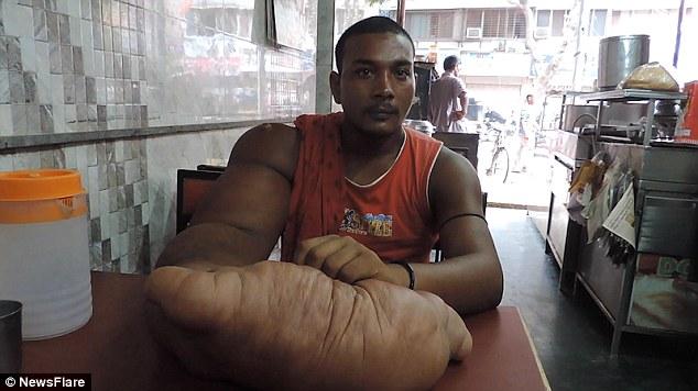 Phải bỏ làng ra đi vì cánh tay phải ... khổng lồ - Ảnh 1