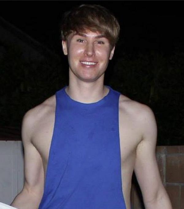 Chàng trai chi 100.000 USD để giống Justin Bieber tử vong - Ảnh 2
