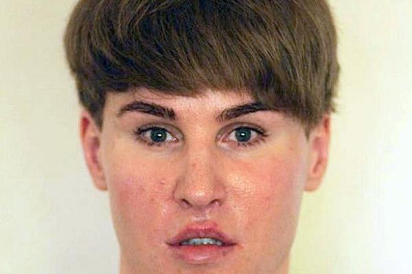 Chàng trai chi 100.000 USD để giống Justin Bieber tử vong - Ảnh 3