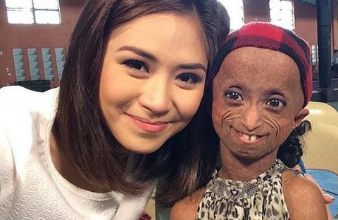 Bệnh lạ khiến cô gái 18 tuổi mang hình hài bà lão 144 tuổi - Ảnh 1