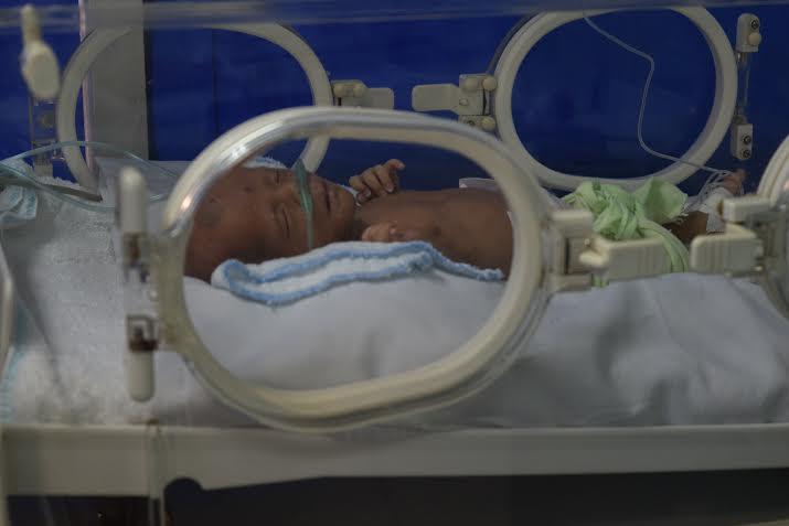 Sự sống lay lắt của bé trai nặng 1,5 kg chưa kịp đặt tên - Ảnh 1