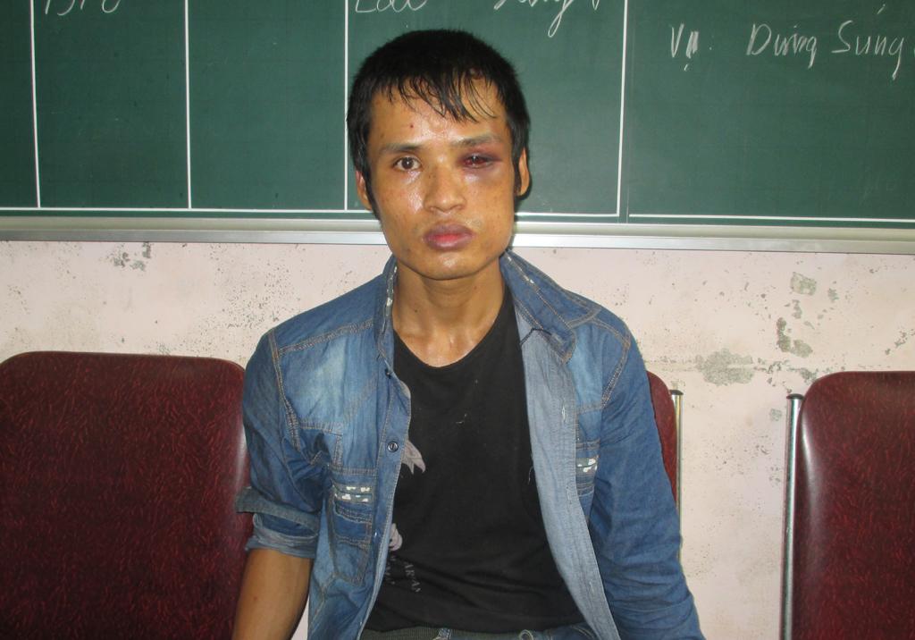 Bắt ông trùm nghi nhiễm HIV điều hành đường dây ma túy - Ảnh 1