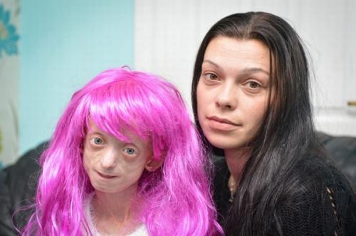 Cô gái 18 tuổi nhưng mang gương mặt bà lão trăm tuổi đón sinh nhật lần thứ 18 - Ảnh 6