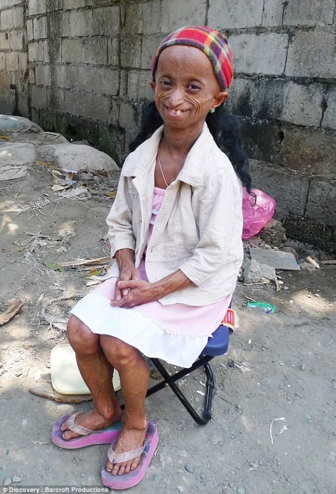 Cô gái 18 tuổi nhưng mang gương mặt bà lão trăm tuổi đón sinh nhật lần thứ 18 - Ảnh 1