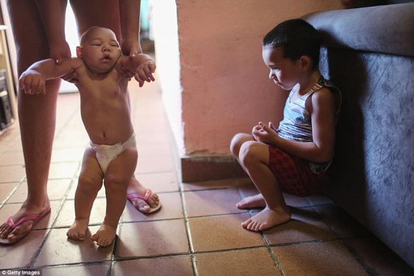 Virus Zika có ảnh hưởng nghiêm trọng đến thai phụ và thai nhi không? - Ảnh 2