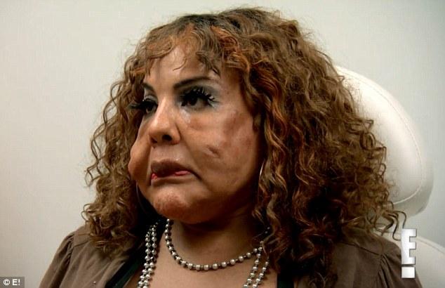 Người phụ nữ chuyển giới bị biến dạng vì bác sĩ 'dởm' tiêm xi măng vào mặt - Ảnh 5