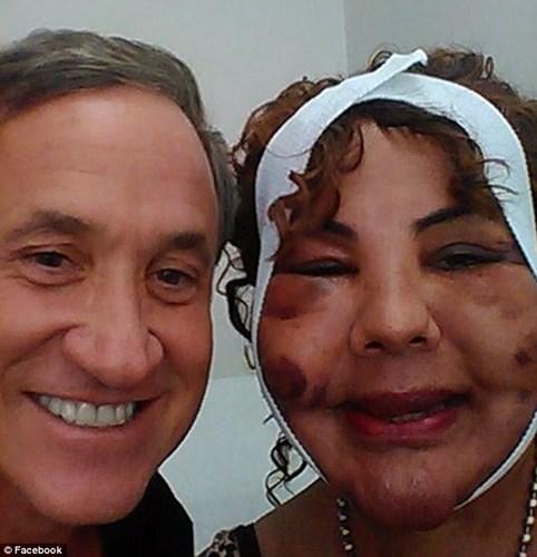 Người phụ nữ chuyển giới bị biến dạng vì bác sĩ 'dởm' tiêm xi măng vào mặt - Ảnh 6