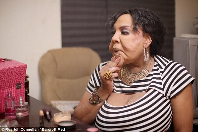 Người phụ nữ chuyển giới bị biến dạng vì bác sĩ 'dởm' tiêm xi măng vào mặt - Ảnh 2