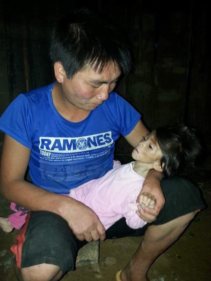 Xót thương bé gái 14 tháng tuổi chỉ nặng 3,5kg vì… đói - Ảnh 1