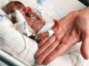 Những em bé sinh non và hành trình sống sót kỳ diệu - Ảnh 5