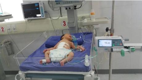 Phẫu thuật thành công bé sơ sinh có nội tạng ngoài thành bụng - Ảnh 2