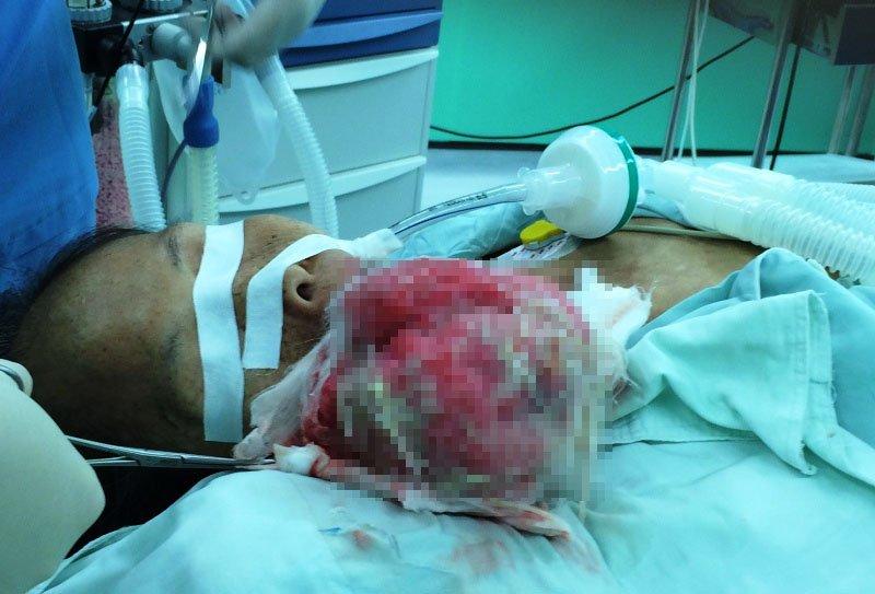 Bác sĩ ớn lạnh với khối u 1 kg bên má nữ bệnh nhân - Ảnh 1