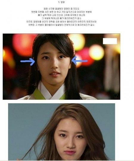 Vừa bị đồn chia tay, Suzy lại bị tố phẫu thuật thẩm mỹ nhiều lần - Ảnh 6