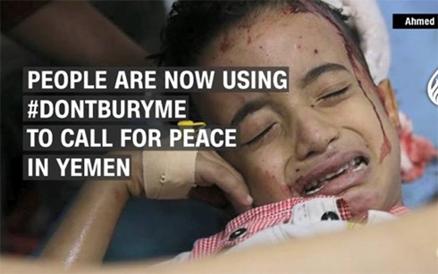 """""""Xin đừng chôn cháu"""" - Lời van xin của một cậu bé vùng chiến sự Yemen - Ảnh 1"""