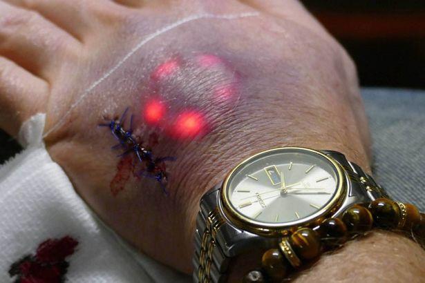 Cấy đèn Led vào da, con người có đang dần Robot hoá? - Ảnh 1