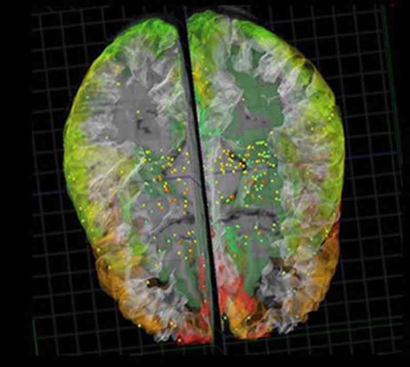 Mô phỏng thành công bộ não của con người - Ảnh 3