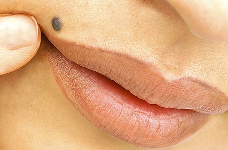 Hãy nghĩ đến ung thư da nếu bạn phát hiện một trong những dấu hiệu này - Ảnh 1