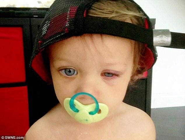 Biết lý do bé gái này suýt mù, bố mẹ phải cẩn thận hóa chất hơn - Ảnh 1