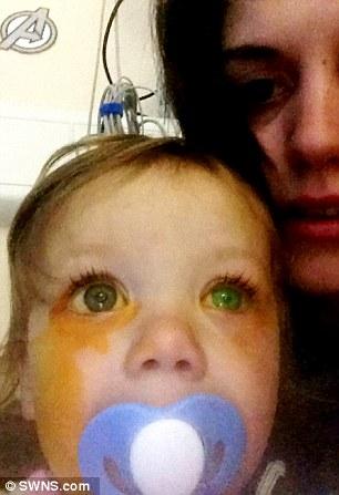 Biết lý do bé gái này suýt mù, bố mẹ phải cẩn thận hóa chất hơn - Ảnh 3