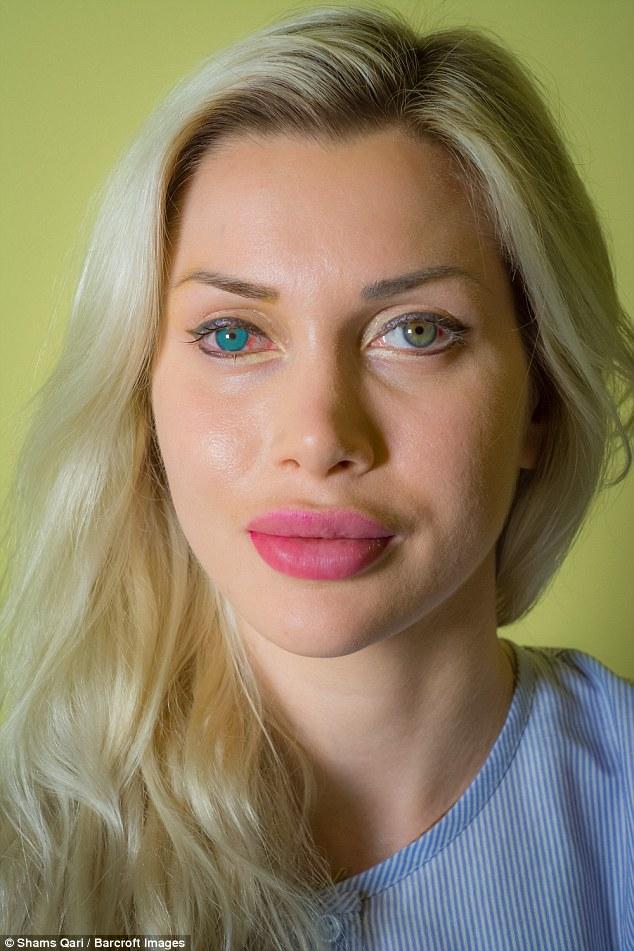 Cô gái chi 2,5 tỷ để có đôi mắt xanh dương như công chúa trong phim hoạt hình - Ảnh 2