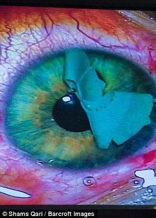 Cô gái chi 2,5 tỷ để có đôi mắt xanh dương như công chúa trong phim hoạt hình - Ảnh 4