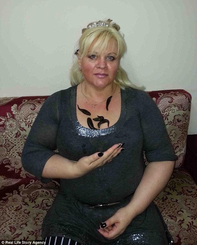 Kinh hoàng người phụ nữ giảm gần 60 kg chỉ nhờ cho đỉa hút máu mỗi ngày - Ảnh 1
