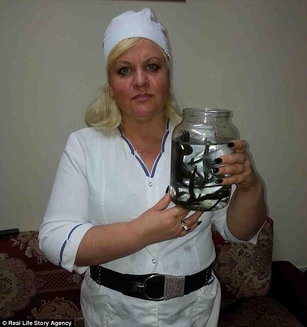 Kinh hoàng người phụ nữ giảm gần 60 kg chỉ nhờ cho đỉa hút máu mỗi ngày - Ảnh 2