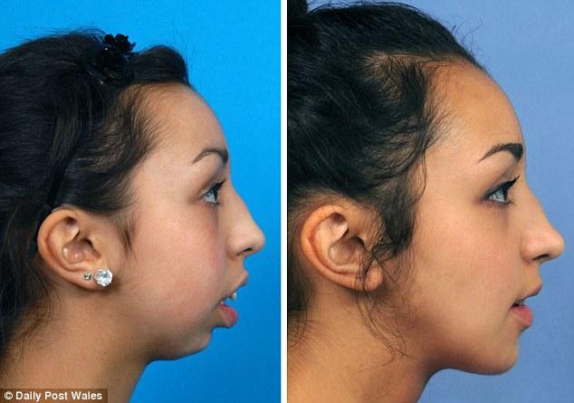 Bức ảnh chứng minh tầm quan trọng của răng miệng với sắc đẹp - Ảnh 2