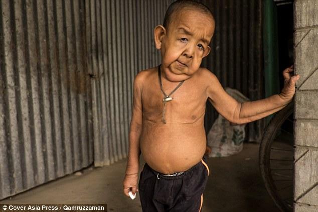 Cậu bé 4 tuổi mang ngoại hình ông lão 80 vì mắc bệnh lạ - Ảnh 1