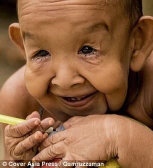 Cậu bé 4 tuổi mang ngoại hình ông lão 80 vì mắc bệnh lạ - Ảnh 2