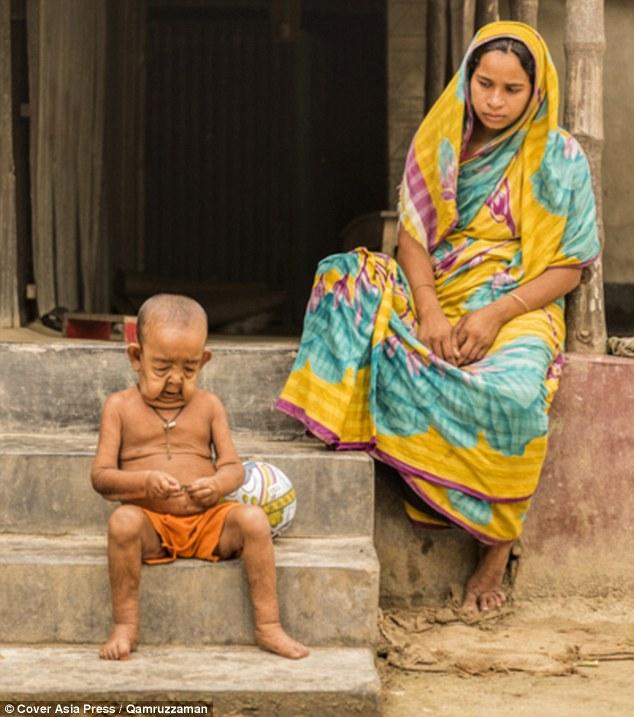 Cậu bé 4 tuổi mang ngoại hình ông lão 80 vì mắc bệnh lạ - Ảnh 5