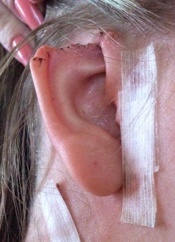 Chỉ vì chiếc nốt ruồi lạ mà cô gái trẻ phải cắt bỏ tai - Ảnh 3