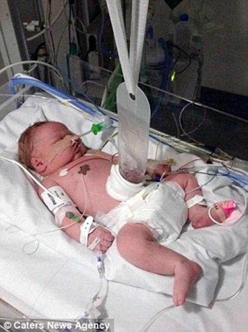 Em bé sinh ra với cơ quan nội tạng nằm ngoài cơ thể - Ảnh 5
