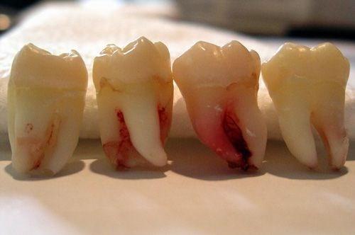 Răng khôn và vấn đề nên giữ hay nên nhổ để tốt cho sức khỏe - Ảnh 1
