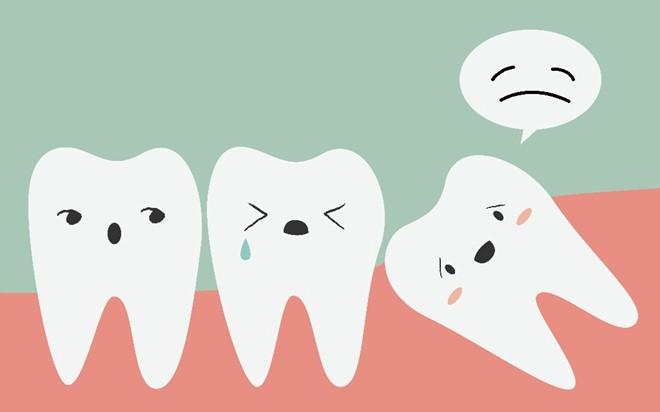 Răng khôn và vấn đề nên giữ hay nên nhổ để tốt cho sức khỏe - Ảnh 2