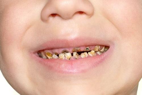 Ăn nhiều nho khô, trẻ vô tình bị hỏng hàm răng xinh - Ảnh 2