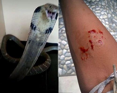 Thiếu niên mất mạng vì nuôi rắn hổ mang làm thú cưng - Ảnh 1