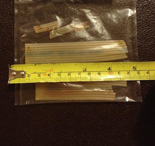 Bác sĩ bỏ quên ống nhựa dài 20cm trong bụng bệnh nhân suốt 20 năm - Ảnh 1