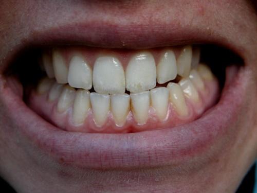 9 thói quen đang phá hỏng răng của bạn mỗi ngày - Ảnh 4