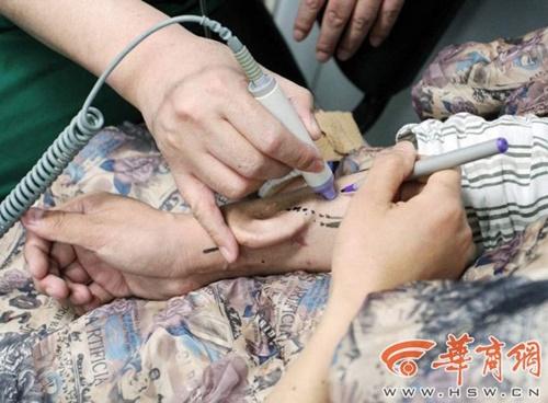 """Cấy ghép thành công chiếc tai """"nuôi"""" trên cánh tay cho bệnh nhân - Ảnh 1"""