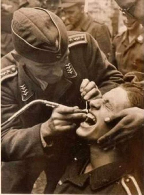 Những hình ảnh khiến bạn rụng rời: Nhổ răng bằng kìm, không thuốc tê - Ảnh 3
